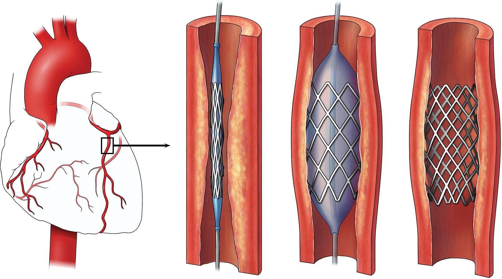 Percutaneous Coronary Intervention (PCI) — RODNIE ORO