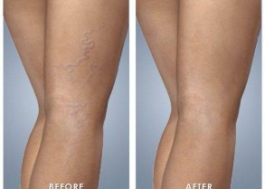 Best-effective-safe-painless-IPL-laser-red-spider-vein-removal-on-the-North-Shore-of-Sydney.jpg