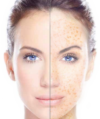 freckles before and after.png