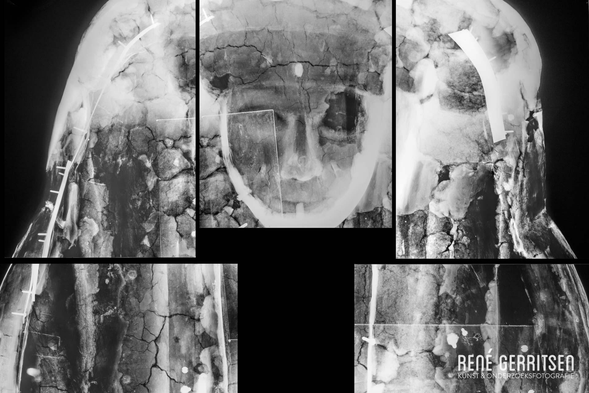 Mummiekist