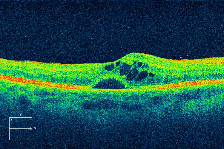 OCT image macular edema