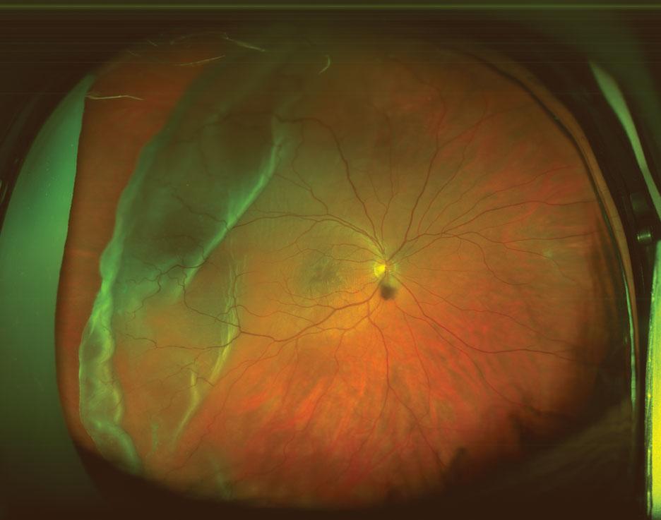 Optomap image retinal detachment