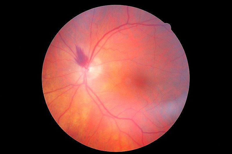 Canon+photo+of+an+optic+nerve+hemorrhage.jpg