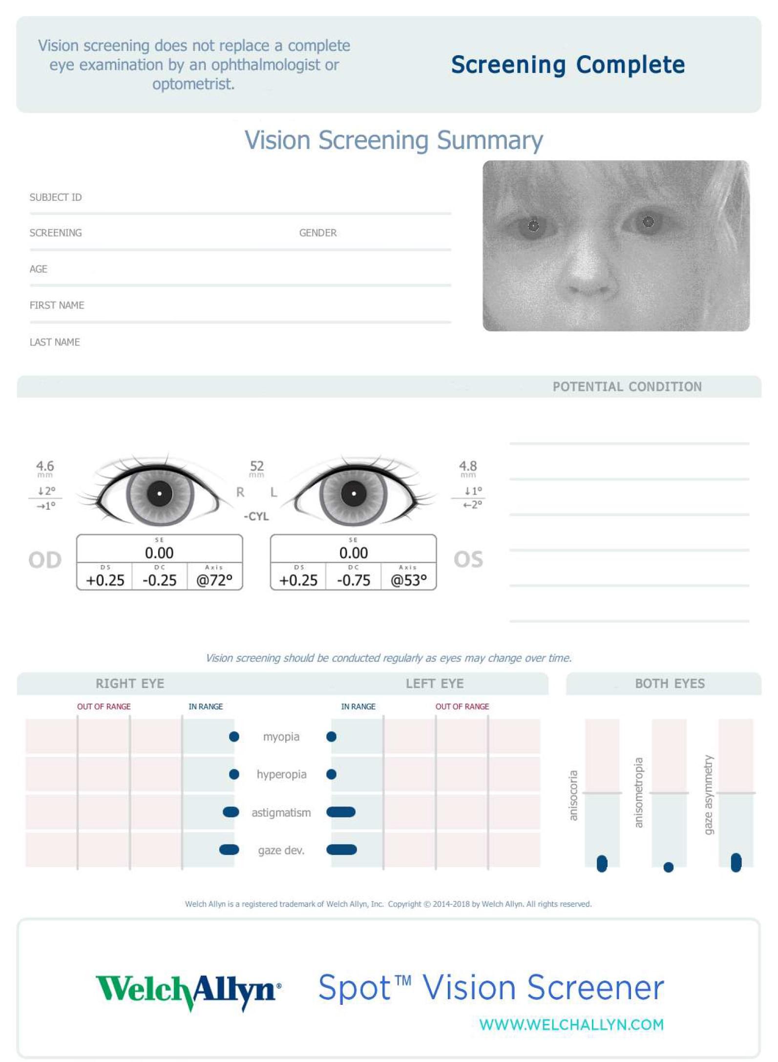 Kid's vision screening printout