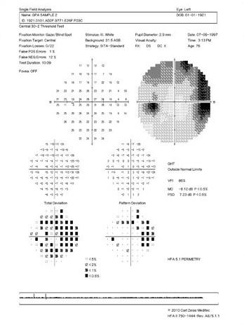 Humphrey visual field glaucoma printout