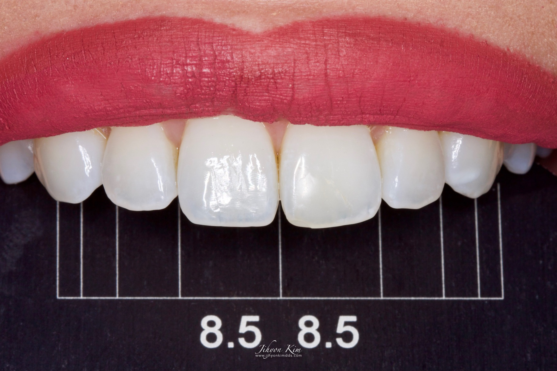Smile Design Gauge with 8.5mm incisor width grid in use intra-orally.