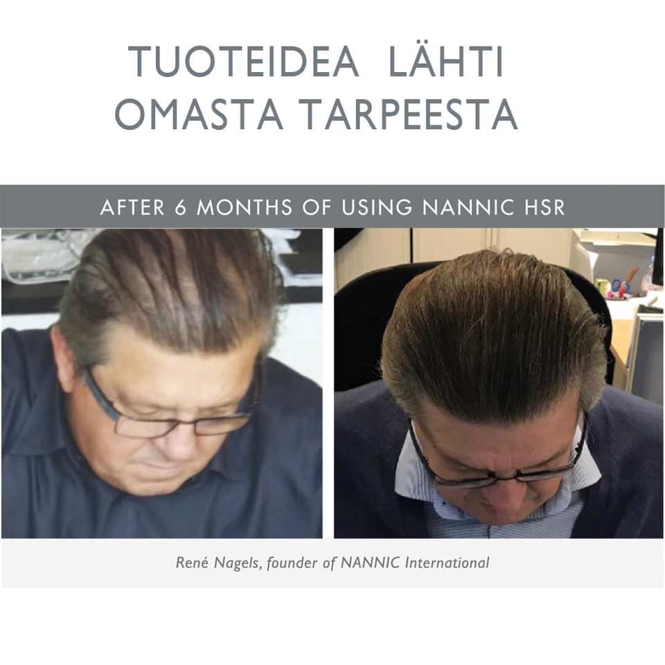 Kärsitkö ohenevista hiuksista? - Ratkaisu: Nannic HSR (Hair, scalp, roots) - innovaatio oheneville hiuksille.Ajatus Nannic HSR -tuotteista syntyi vuonna 2010 kun Nannicin luojaa René Nagelsia häiritsi oma hiusten oheneminen.Satojen tuoteformuloiden jälkeen syntyi hoitokonsepti oheneville hiuksille - Nannic HSR - hiusten kasvua lisäävät hoitotuotteet miehille ja naisille.Konseptissa käytät Nannic seerumia, shampoota ja hoitoainetta.Nannic HSR ravitsee hiuksia syvällä hiusten juurissa tekemällä hiussäikeet vahvoiksi ja elastisiksi. Tuotteet pitävät päänahan terveenä, ja varmistavat, että karvatupet toimivat tehokkaasti.Tulokset puhuvat puolestaan.