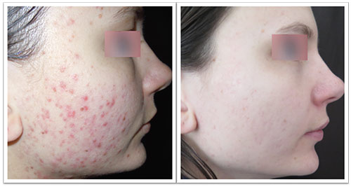 3-treats-pr-530-acne.jpg