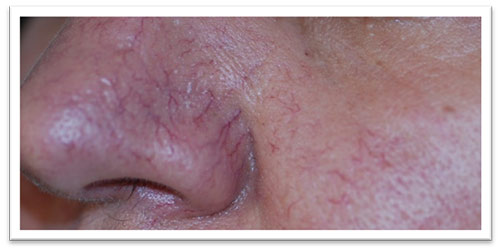 2-treatments-with-Ellipse-IPL-applicator-VL-555-b4-.-png.jpg