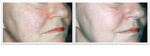 2-treatments.jpg