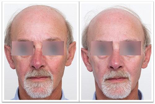 3-treatments-pr-530-.jpg