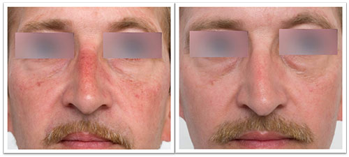 3-treatments-pr-530-facial-telangiectasias.jpg