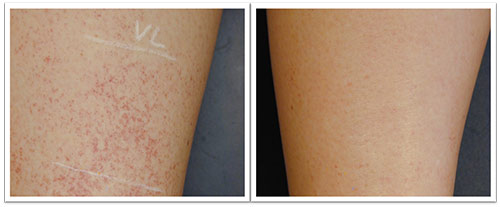 10-weeks-after-1-treatment-with-VL-555-applicator-.jpg