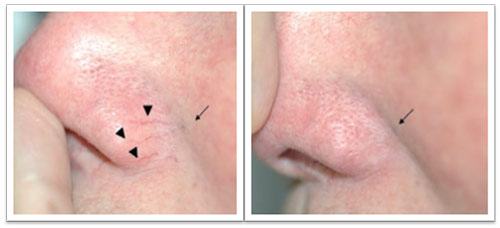 12-weeks-after-treatment-telangiec-.jpg