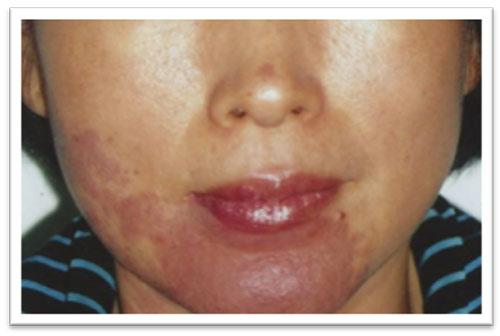 5-treatments-.jpg