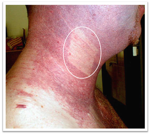 17-days-after-1-treatment-port-wine-stains.jpg