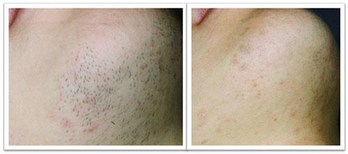 3-treatments.jpg