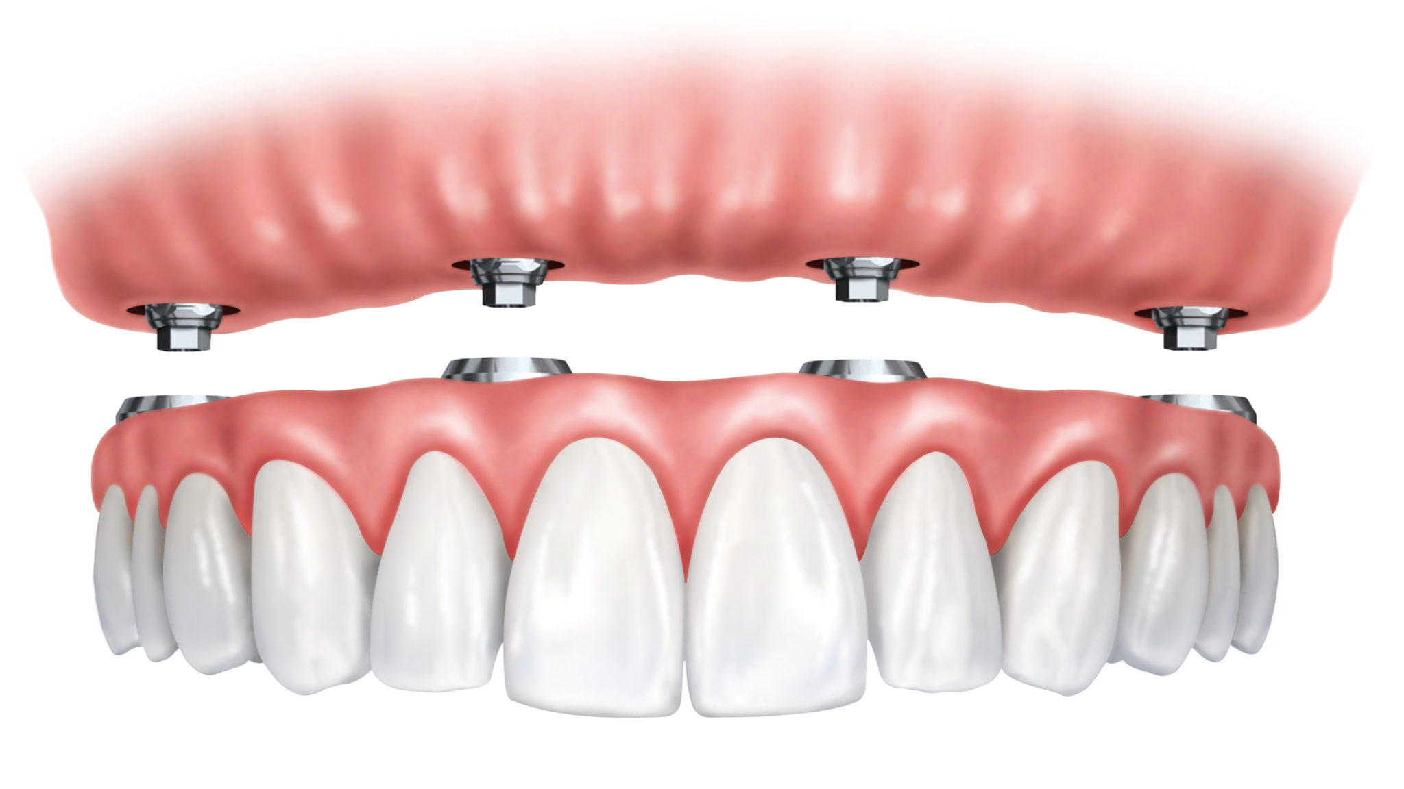 implant-dentures.jpg