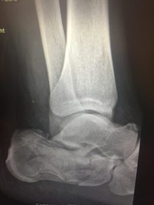 trauma rear foot ankle 3.jpg