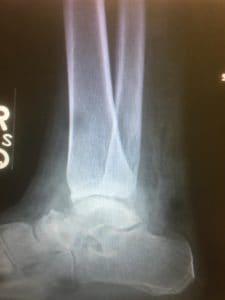 club foot surgery tampa fl