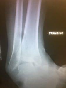club foot reconstruction specialist tampa fl