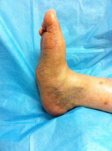 charcot foot surgery