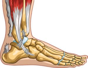 achilles tendon surgeon in tampa florida