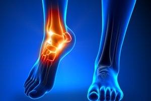 chronic sprain ankle treatment tampa florida podiatrist
