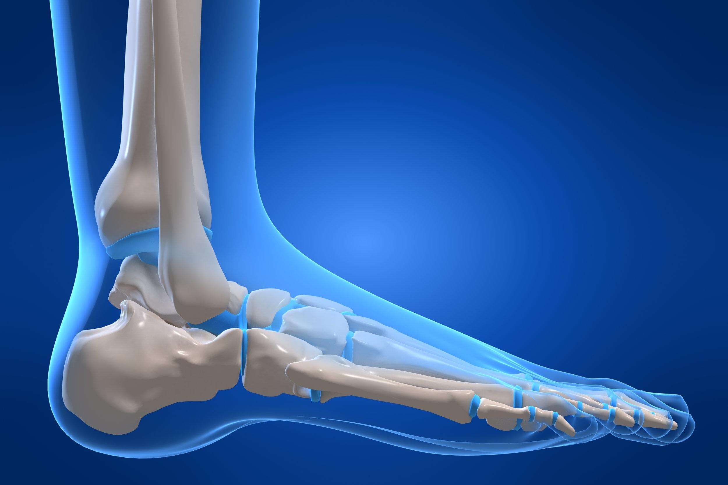 tampa fl foot doctor treats foot fractures, broken ankle, broken toes