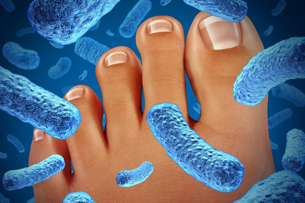 podiatrist treats toenail fungus in tampa florida