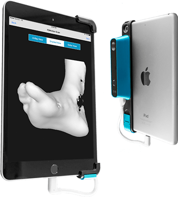 tampa foot doctors use scanner for custom molded orthotics