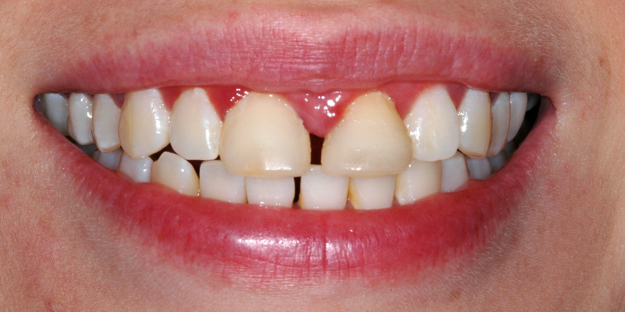 porcelain_veneers_before.jpg