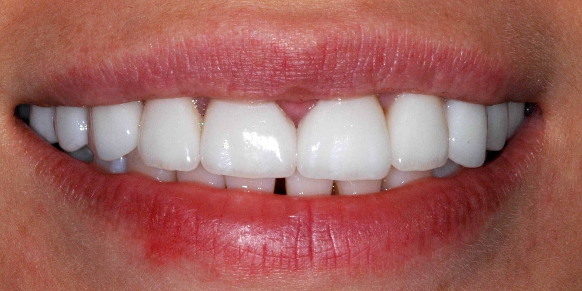 porcelain_veneers_after.jpg