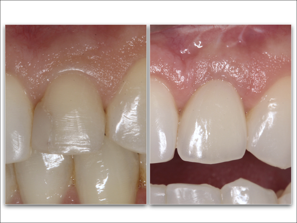 Naturally looking implant restorations