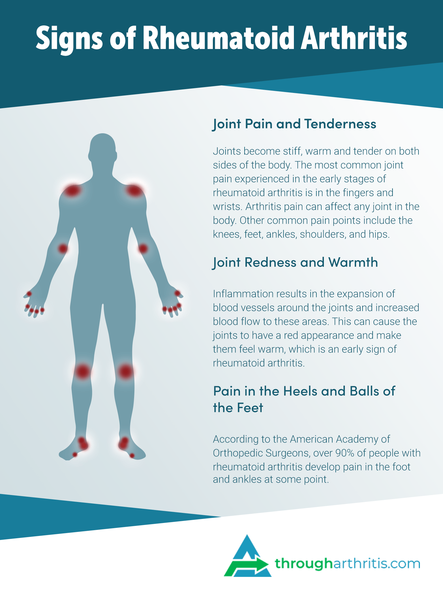 Rheumatoid Arthritis Symptoms Common Signs Of Rheumatoid Arthritis Through Arthritis Finding A Healthier Lifestyle Through Rheumatoid Arthritis