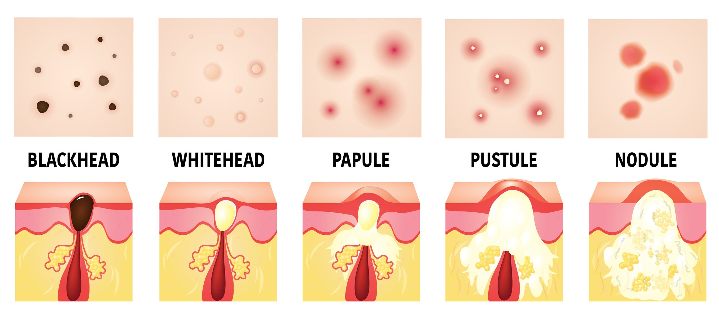 """Blackheads and Whiteheads"" in this graphic are examples of non-inflamed acne; ""Papules, Pustules, and Nodules (Cysts) are examples of inflamed acne."