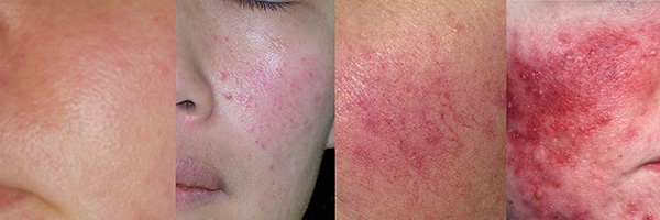 Examples of Rosacea, ranging mild to severe