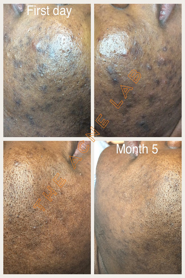 "Acne Hyperpigmentation - This is NOT ""scarring"", it is hyperpigmentation or post-inflammatory hyperpigmentation. Hyperpigmentation can be changed with the proper skin care products, acne facials and time."