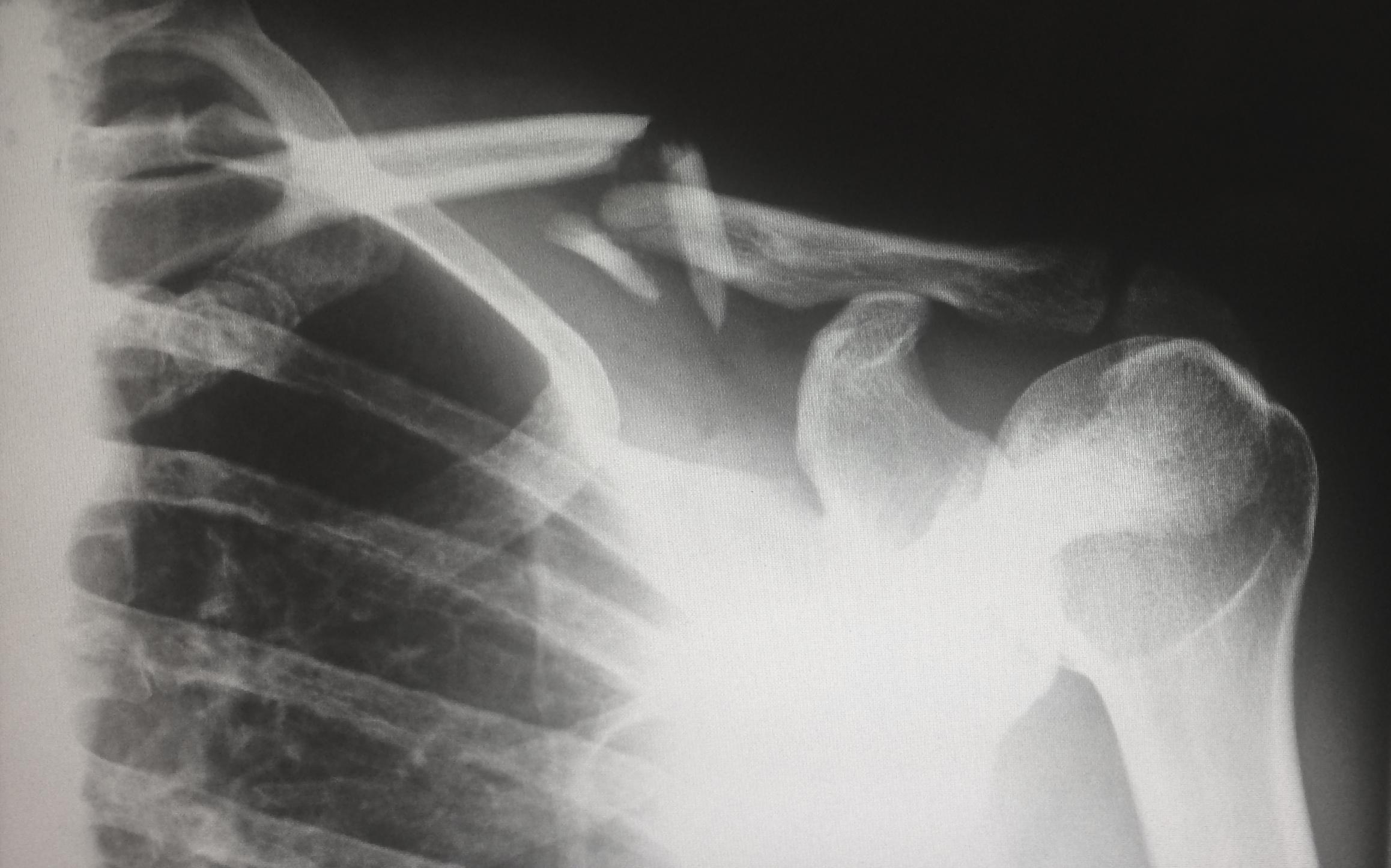Rheumatoid arthritis - let us help