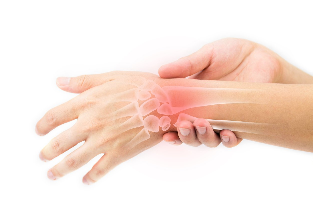 Carpal tunnel pain - there is non surgical treatment
