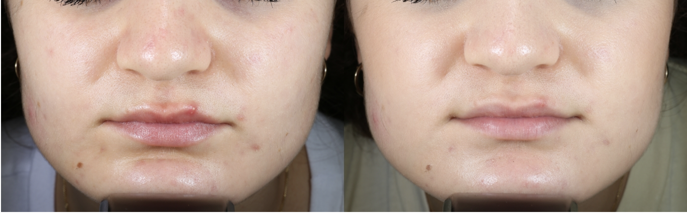 Acne-1.png
