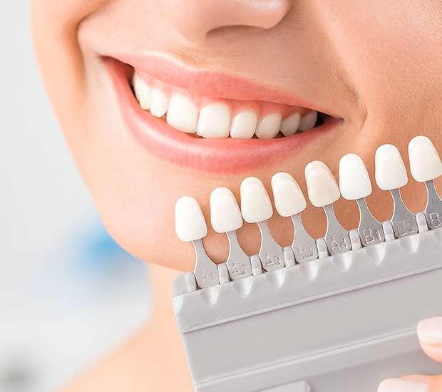 dental-veneers-and-dental-laminates-header.jpg