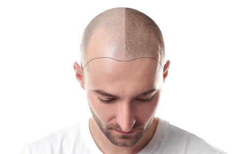 hair-transplant-large-1080x675.jpg