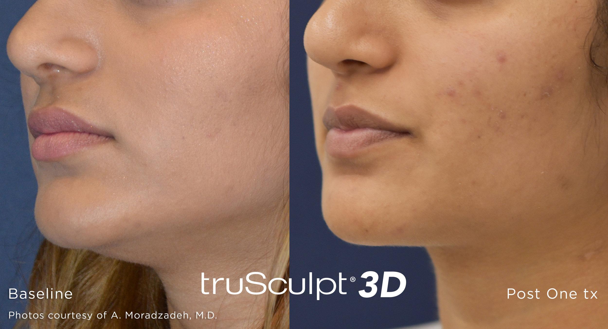 truSculpt-3D-B-A-Image-15.jpg