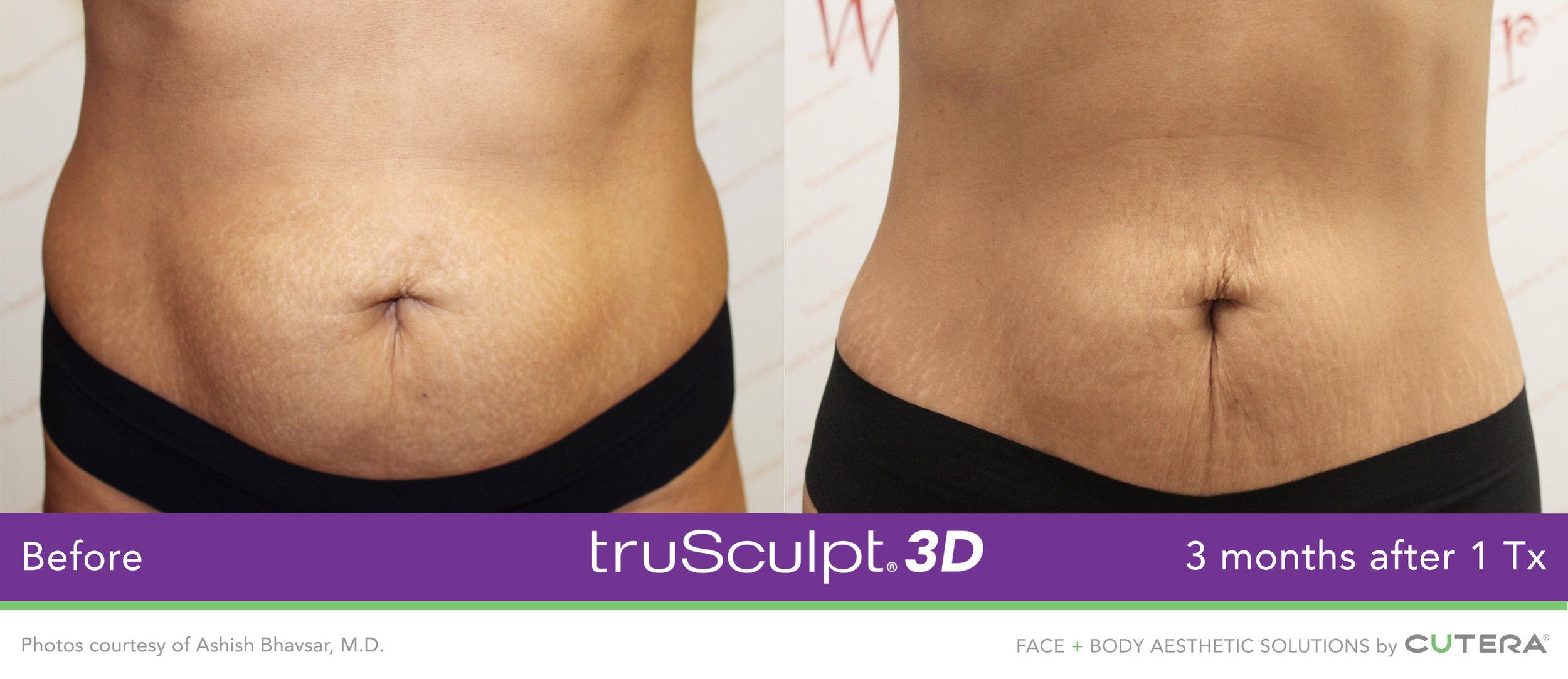 truSculpt-3D-B-A-Image-12.jpg