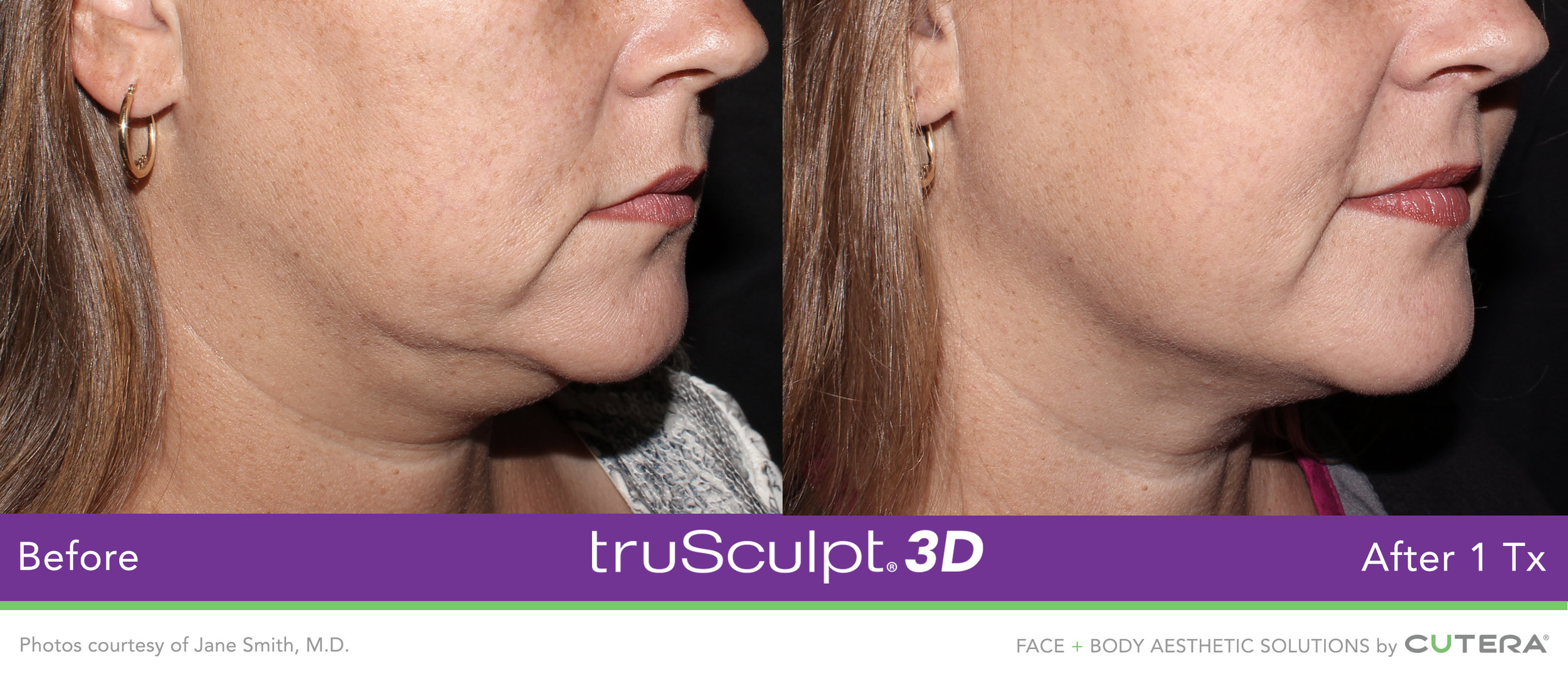 truSculpt-3D-B-A-Image-17.jpg