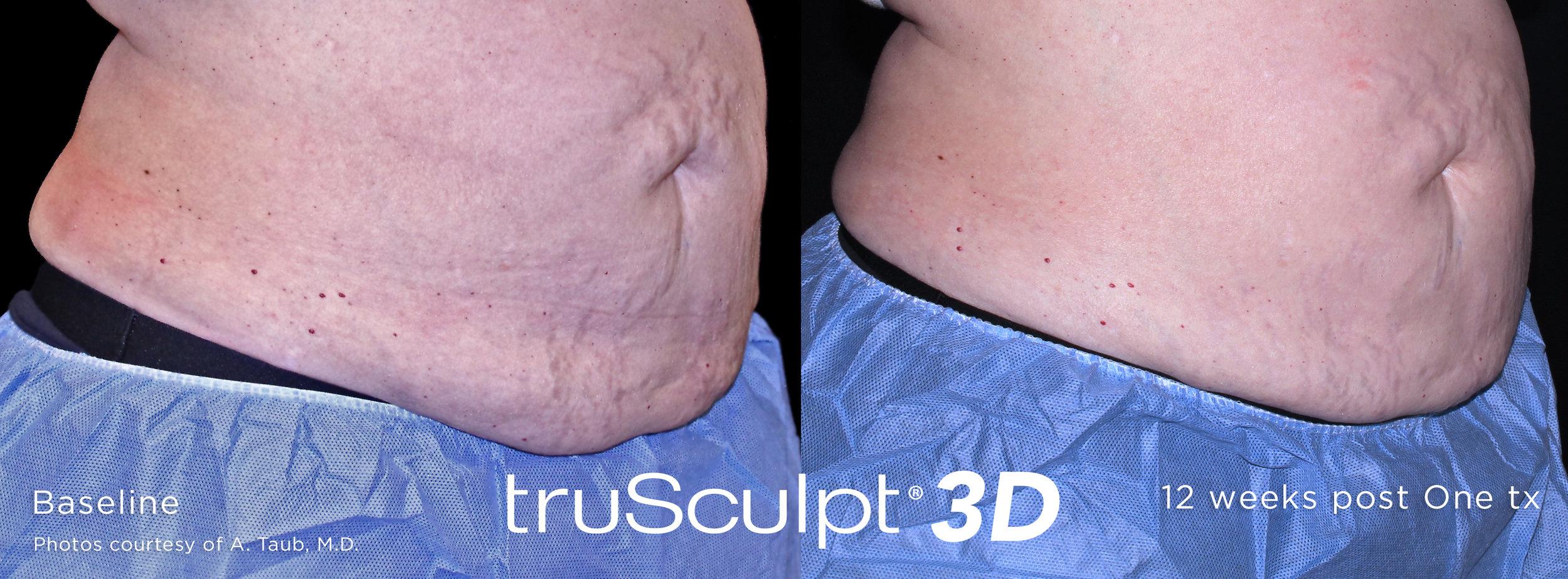 truSculpt-3D-B-A-Image-3 (2).jpg