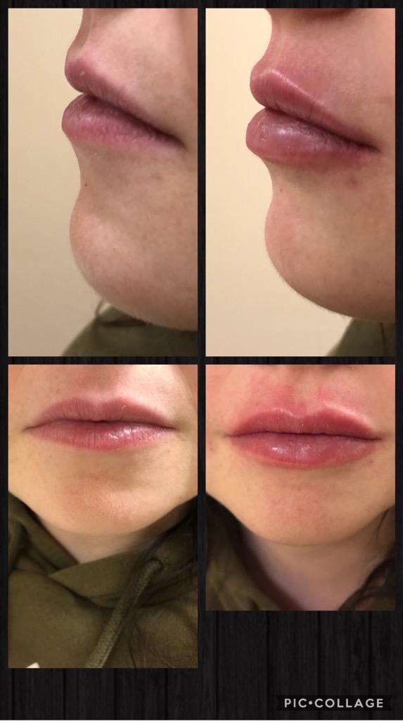 Subtle Lip Enhancement