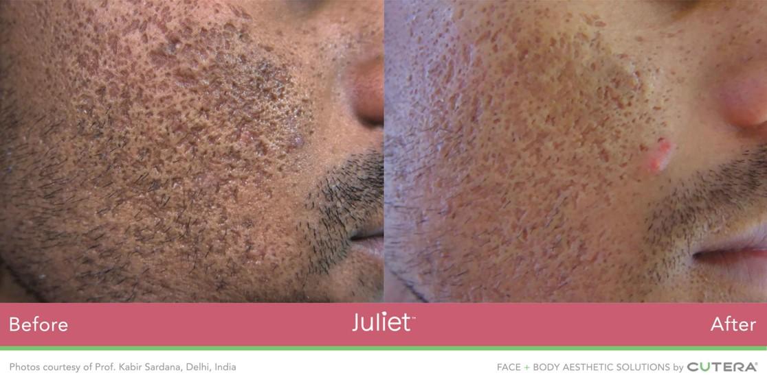 Juliet-Face-man.jpg