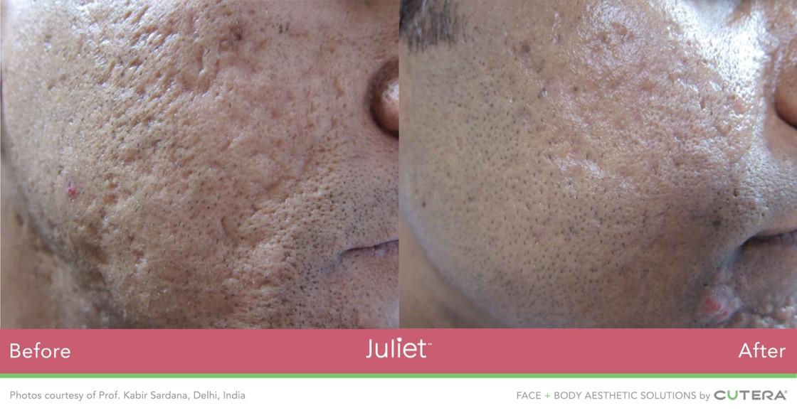 Juliet-Face-man2.jpg